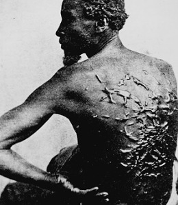 Whip scars of a slave